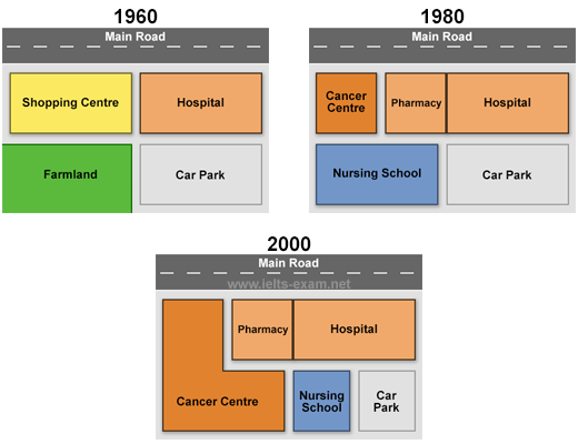 The diagrams below show the changes that have taken place at queen essay topics the diagrams below show the changes that have taken place at queen mary hospital since its construction in 1960 ccuart Choice Image